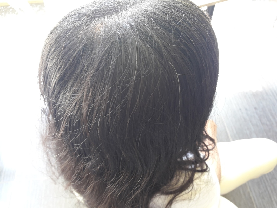 Teenager With White Or Gray Hairs